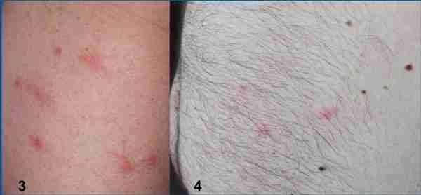 lesioni da Scleroderma e Pyemotes